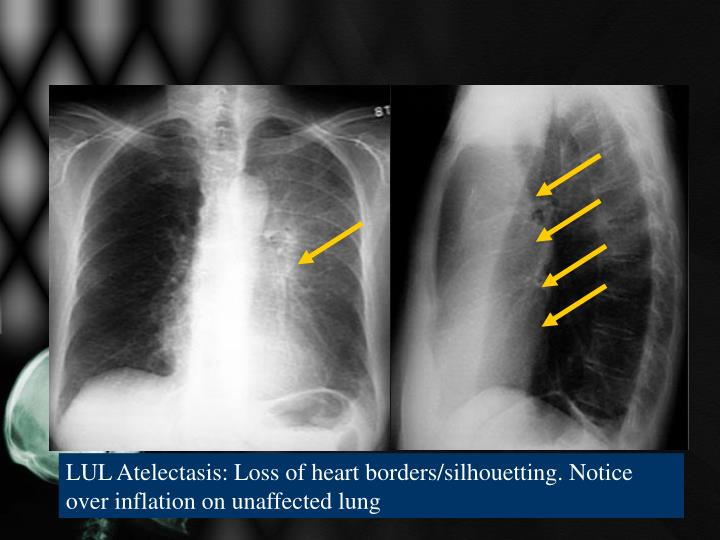 LUL Atelectasis: Loss of heart borders/silhouetting. Notice over inflation on unaffected lung
