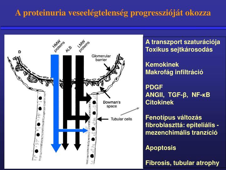 A proteinuria veseelégtelenség progresszióját okozza