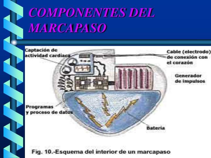 COMPONENTES DEL MARCAPASO
