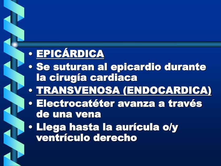 EPICÁRDICA