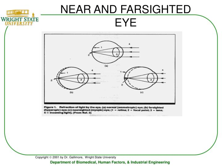 NEAR AND FARSIGHTED EYE