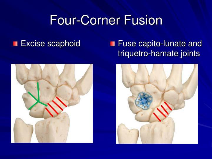 Four-Corner Fusion