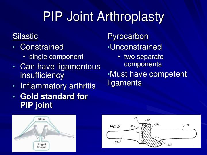 PIP Joint