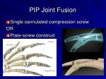 pip joint fusion