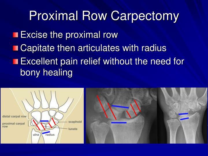 Proximal Row