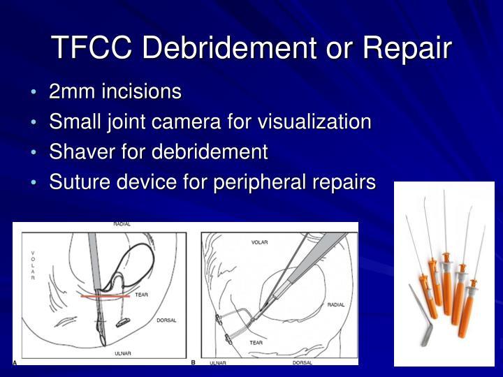 TFCC Debridement or Repair