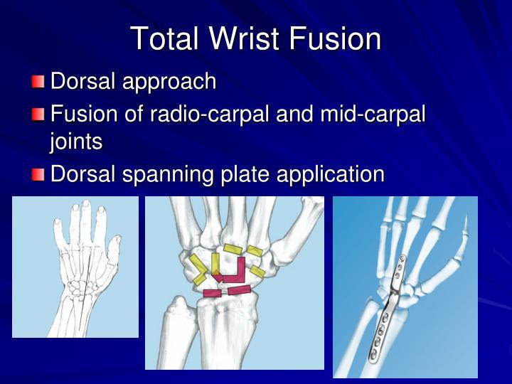 Total Wrist Fusion