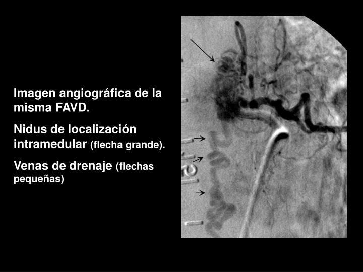 Imagen angiográfica de la misma FAVD.