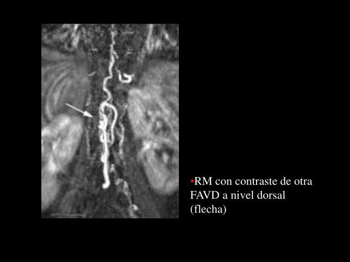 RM con contraste de otra FAVD a nivel dorsal (flecha)