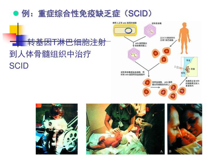 例:重症综合性免疫缺乏症(