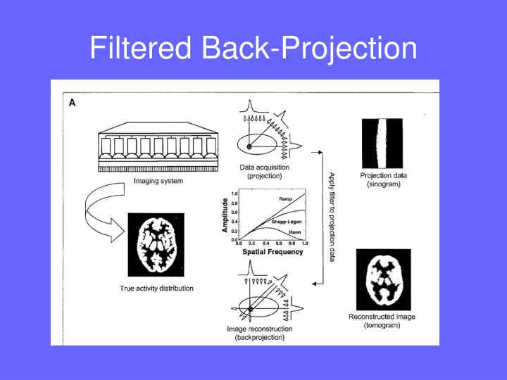 Filtered Back-Projection
