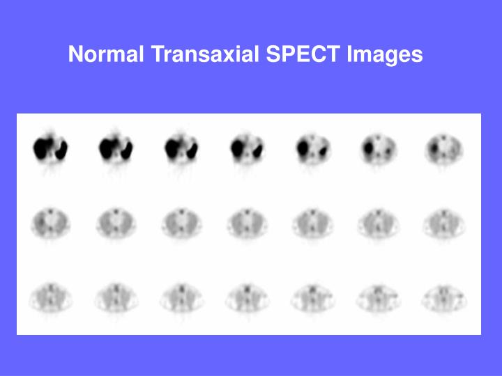 Normal Transaxial SPECT Images