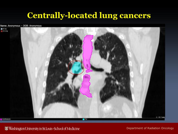 Centrally-located lung cancers