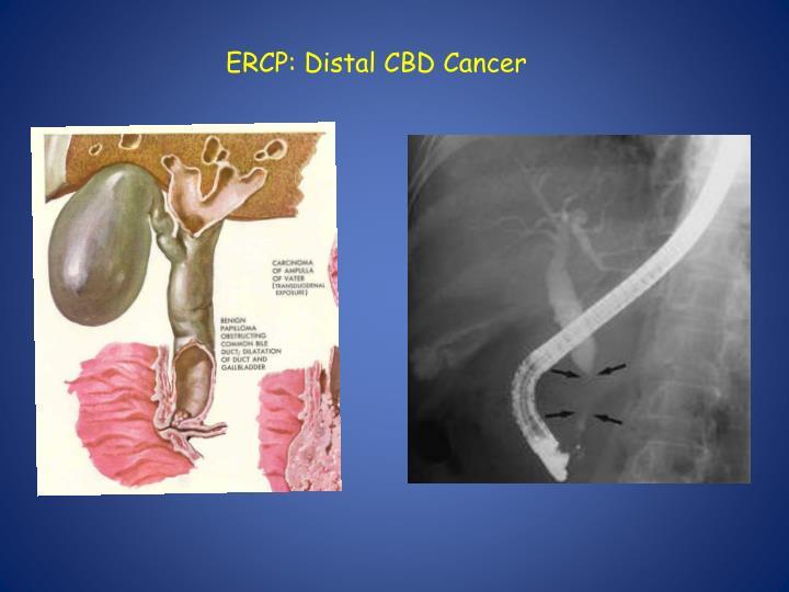 ERCP: Distal CBD Cancer