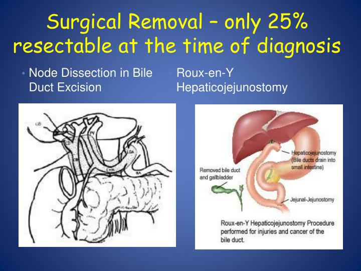 Surgical Removal – only 25%