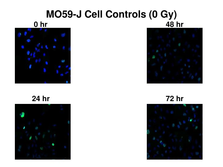 MO59-J Cell Controls (0 Gy)
