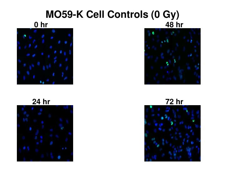MO59-K Cell Controls (0 Gy)