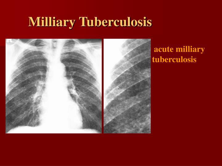 Milliary Tuberculosis