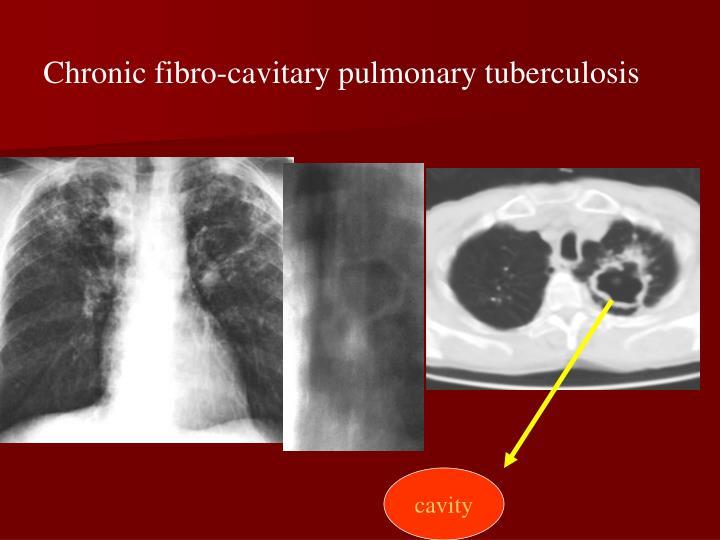 Chronic fibro-cavitary pulmonary tuberculosis