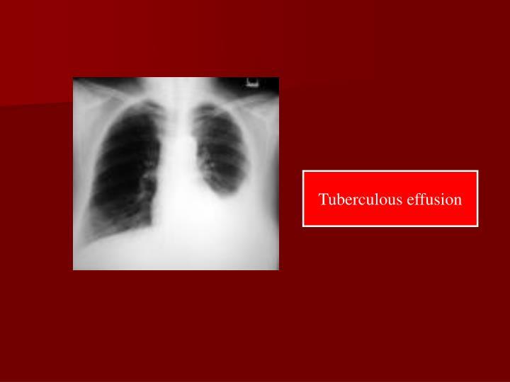 Tuberculous effusion