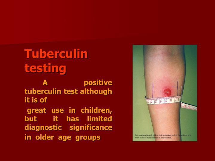 Tuberculin testing