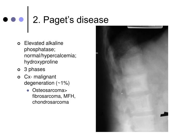 2. Paget's disease