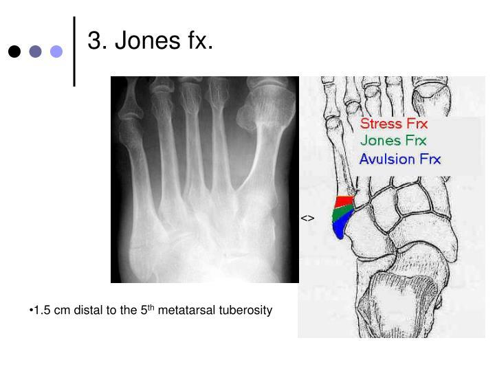 3. Jones fx.