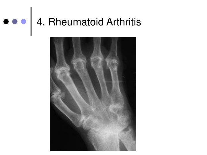 4. Rheumatoid Arthritis
