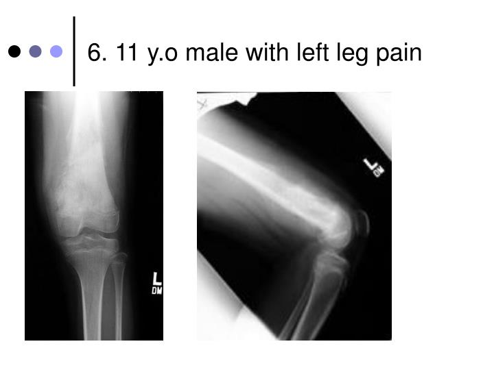 6. 11 y.o male with left leg pain
