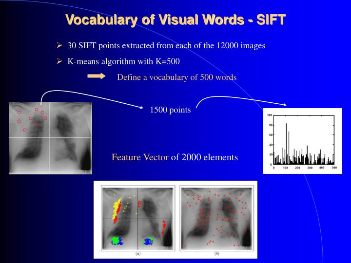 Vocabulary of Visual Words - SIFT