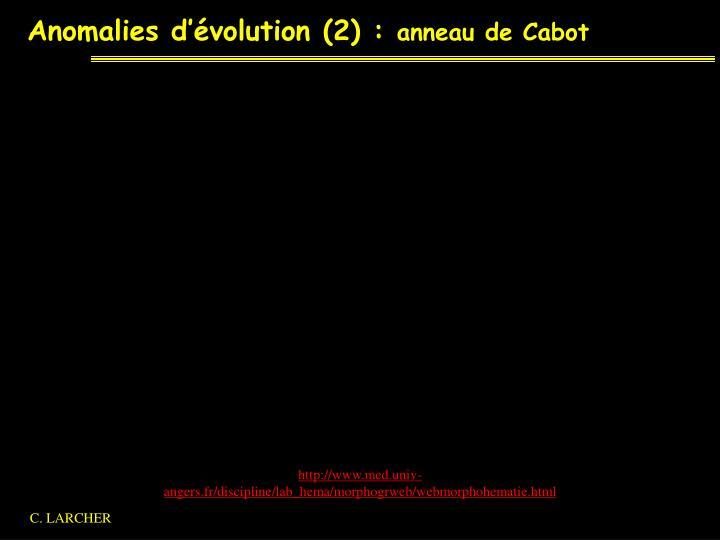 Anomalies d'évolution (2) :