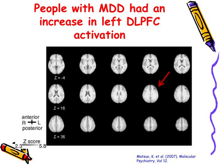 People with MDD had an increase in left DLPFC activation