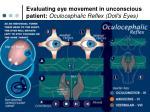 evaluating eye movement in unconscious patient oculocephalic reflex doll s eyes