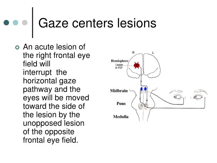 Gaze centers lesions