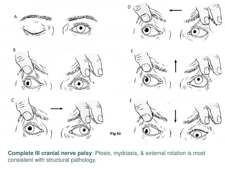 Complete III cranial nerve palsy