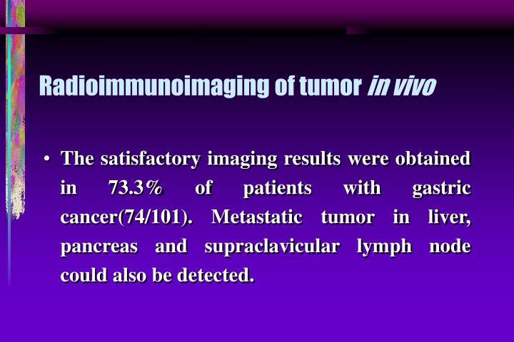 Radioimmunoimaging of tumor