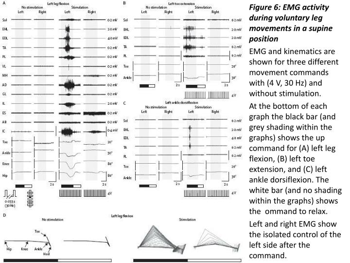 Figure 6: EMG activity during voluntary leg movements in a supine position