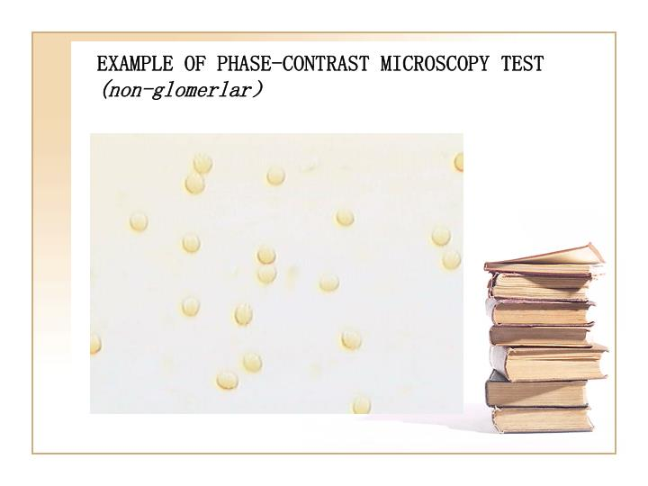 EXAMPLE OF PHASE-CONTRAST MICROSCOPY TEST