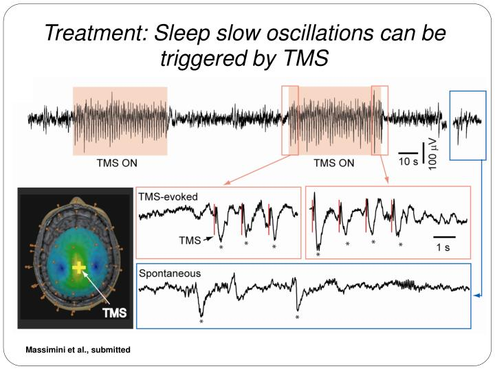 Treatment: Sleep slow oscillations can be triggered by TMS