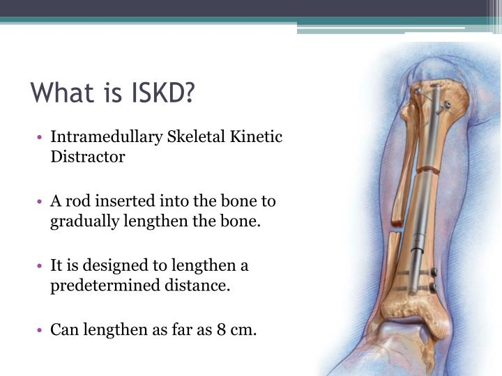 What is ISKD?