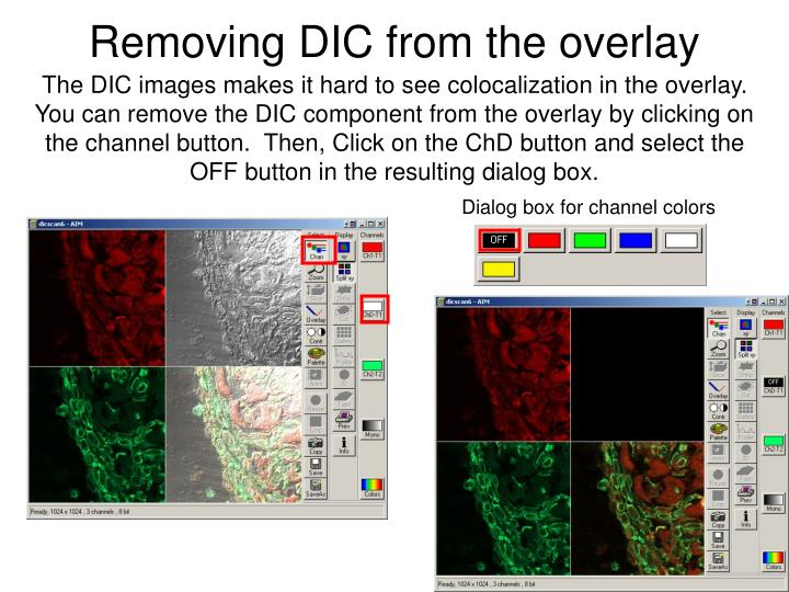 Removing DIC from the overlay