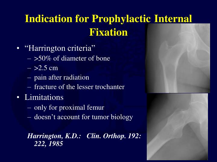 Indication for Prophylactic