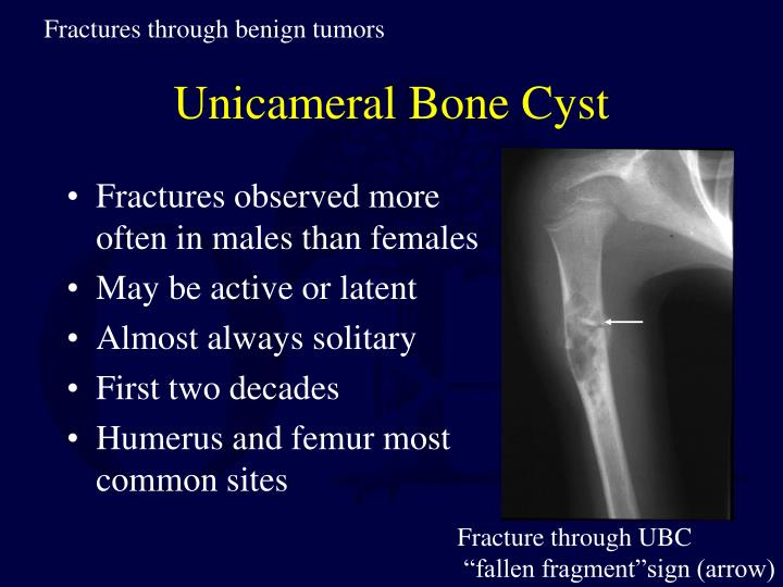 Fractures through benign tumors