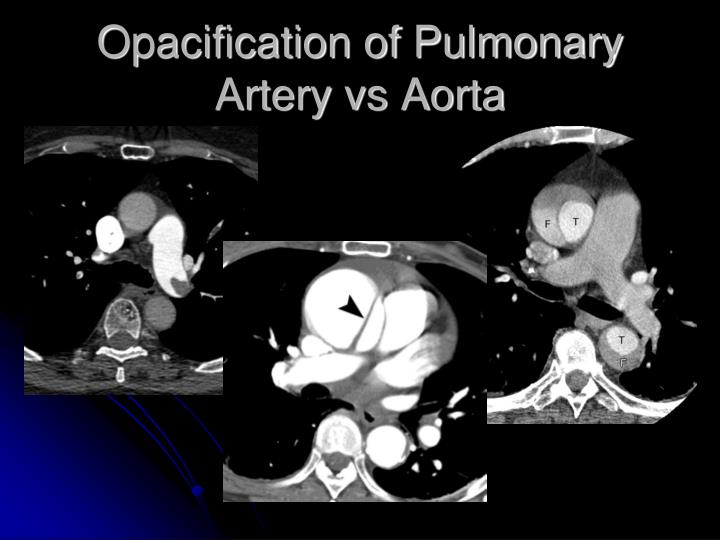 Opacification of Pulmonary Artery vs Aorta