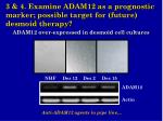 3 4 examine adam12 as a prognostic marker possible target for future desmoid therapy1