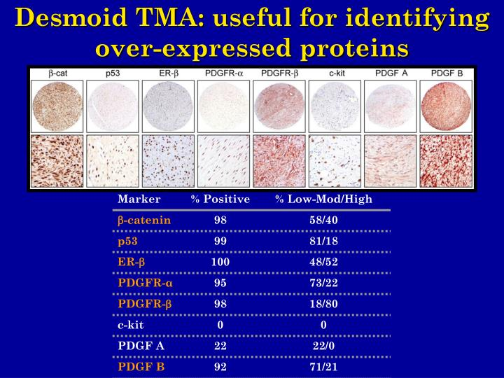 Desmoid TMA: useful for identifying over-expressed proteins