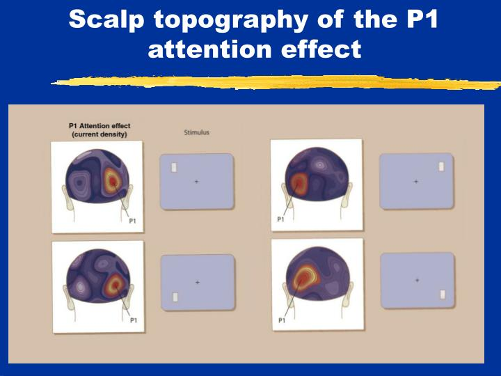 Scalp topography of the P1 attention effect