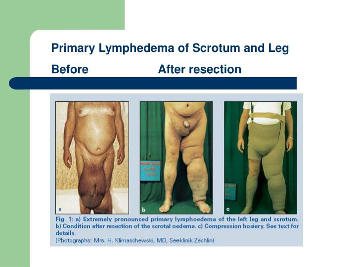 Primary Lymphedema of Scrotum and Leg