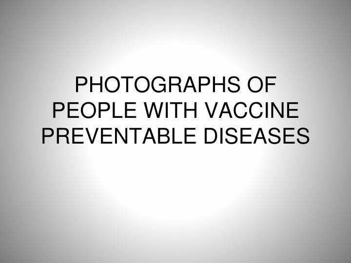 PHOTOGRAPHS OF PEOPLE WITH VACCINE PREVENTABLE DISEASES