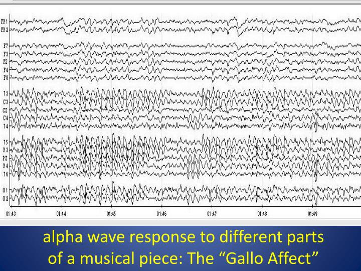 """alpha wave response to different parts of a musical piece: The """"Gallo Affect"""""""
